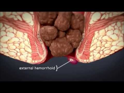 HEMORRHOiDS | What are hemorrhoids ? What is the treatment method for hemorrhoids ?