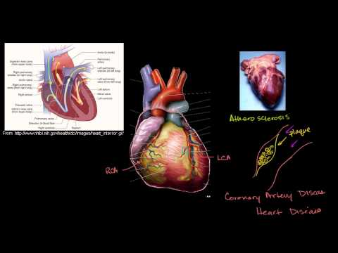 Coronary heart Ailment and Heart Attacks