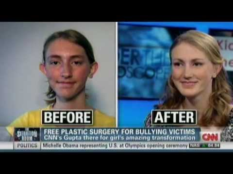 Totally free Plastic Surgical procedure For Bullying Sufferer NADIA ILSE