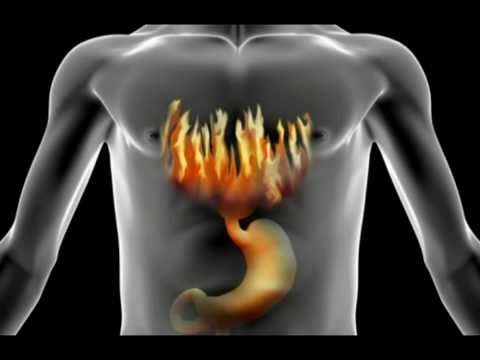 How To Treat, Cure & End Heartburn | Acid Reflux (My Story)