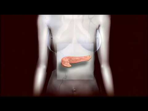 Diabetic issues Overview