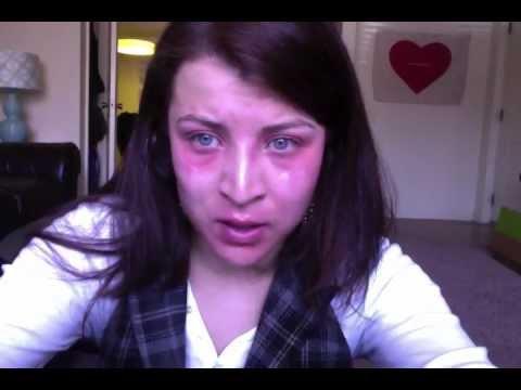 Experience Eczema